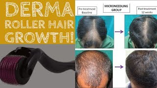 Does Derma Roller Work For Hair Growth?