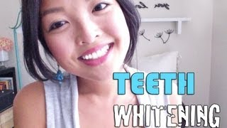 HOW TO: Whiten Your Teeth INSTANTLY!