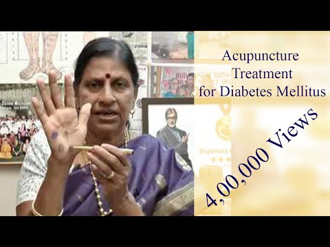 Acupuncture Treatment for Diabetes Mellitus - Natural Medicine இயற்கை மருத்துவம் - Dr. Shyamala