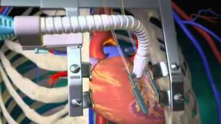 Off Pump Coronary Artery Bypass Surgery   What Is an OPCAB   Coronary Artery Bypass Surgery Video