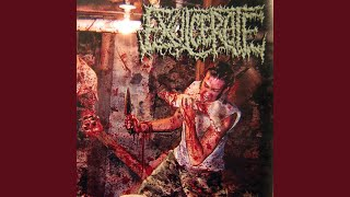 Post Mortem Disfigurement