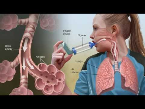 Difference Between Bronchial Asthma and Asthma