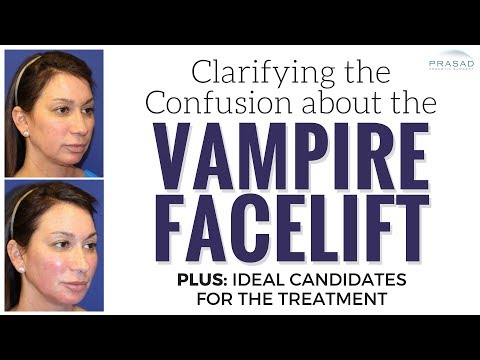 What a Real Vampire Facelift is, What it Does, and Who are the Right Candidates for It