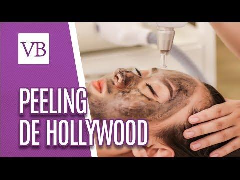 Peeling de Hollywood - Você Bonita (11/07/18)