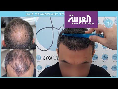 صباح العربية | ما الجديد في علاجات الصلع؟  - نشر قبل 24 دقيقة