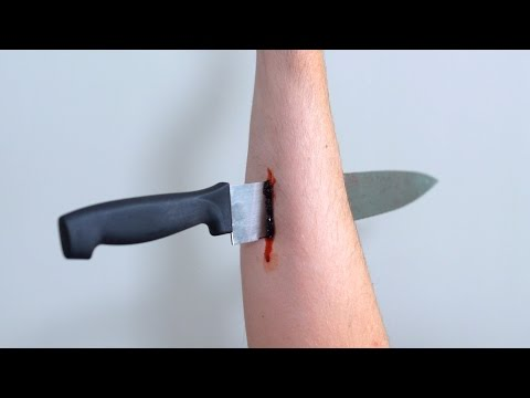 KNIFE IN ARM!