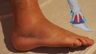 De ¿Qué edema en tobillos? los causa el picadura