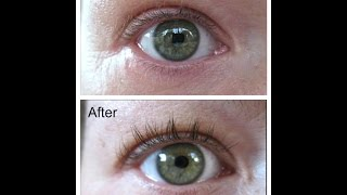 Careprost (Latisse) Before & After. NO MASCARA