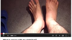 ED workup of a swollen foot - response to viewer video