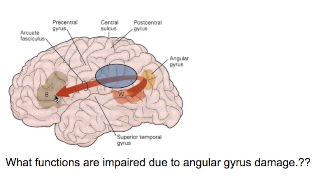 prosopagnosia face blindnessangular gyrus lesions youtube