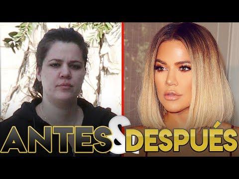 Khloe Kardashian | Transformación Antes y Después | Cirugías Estéticas