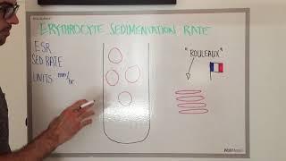 Erythrocyte Sedimentation Rate: Explained