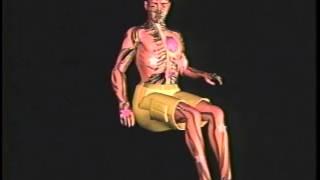 1 Autonomic Dysreflexia