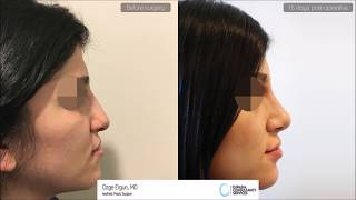 Rhinoplasty Before After - 15 Days Result - Ozge Ergun MD, Aesthetic Plastic Surgeon