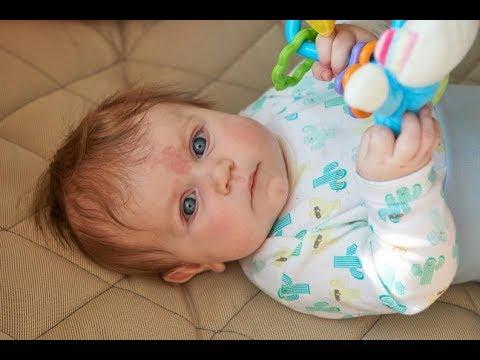 Manchas rojas en el ojo de mi bebe