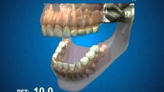видео У ребенка режутся зубы и чешутся десна? Это-прорезывание зубов! Вам поможет ПРОРЕЗЫВАТЕЛЬ ДЛЯ ЗУБОВ!