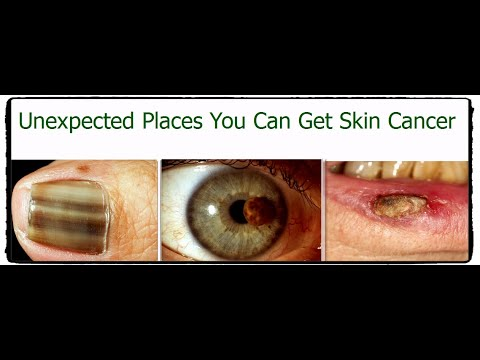 Unexpected Places You Can Get Skin Cancer