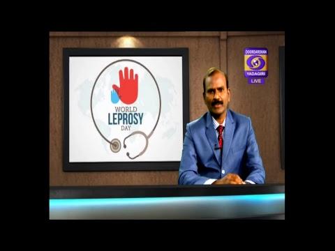 Aarogya Darshini Dt: 30/01/2019