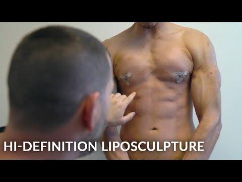 Liposculpture Treatment | Liposuction Surgery Video | Hi-Definition Liposuction | Patient's Story