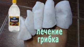 видео Лечение грибка ногтей яблочным уксусом
