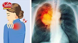 8 signes d'alerte précoces du cancer du poumon que toute femme doivent savoir