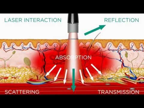 High Intensity Laser - Medical Effects