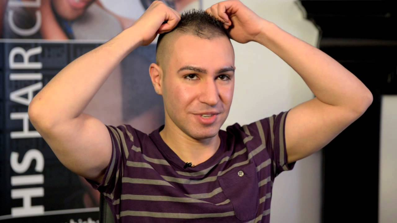 scalp micropigmentation - aj goes to his hair clinic (after