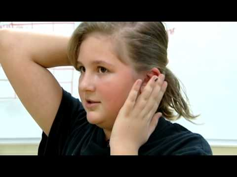 Foundation helps Blanchester girl get surgery to correct facial deformity
