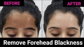 Get rid of Black Forehead + Whiten & Brighten your Skin Naturally