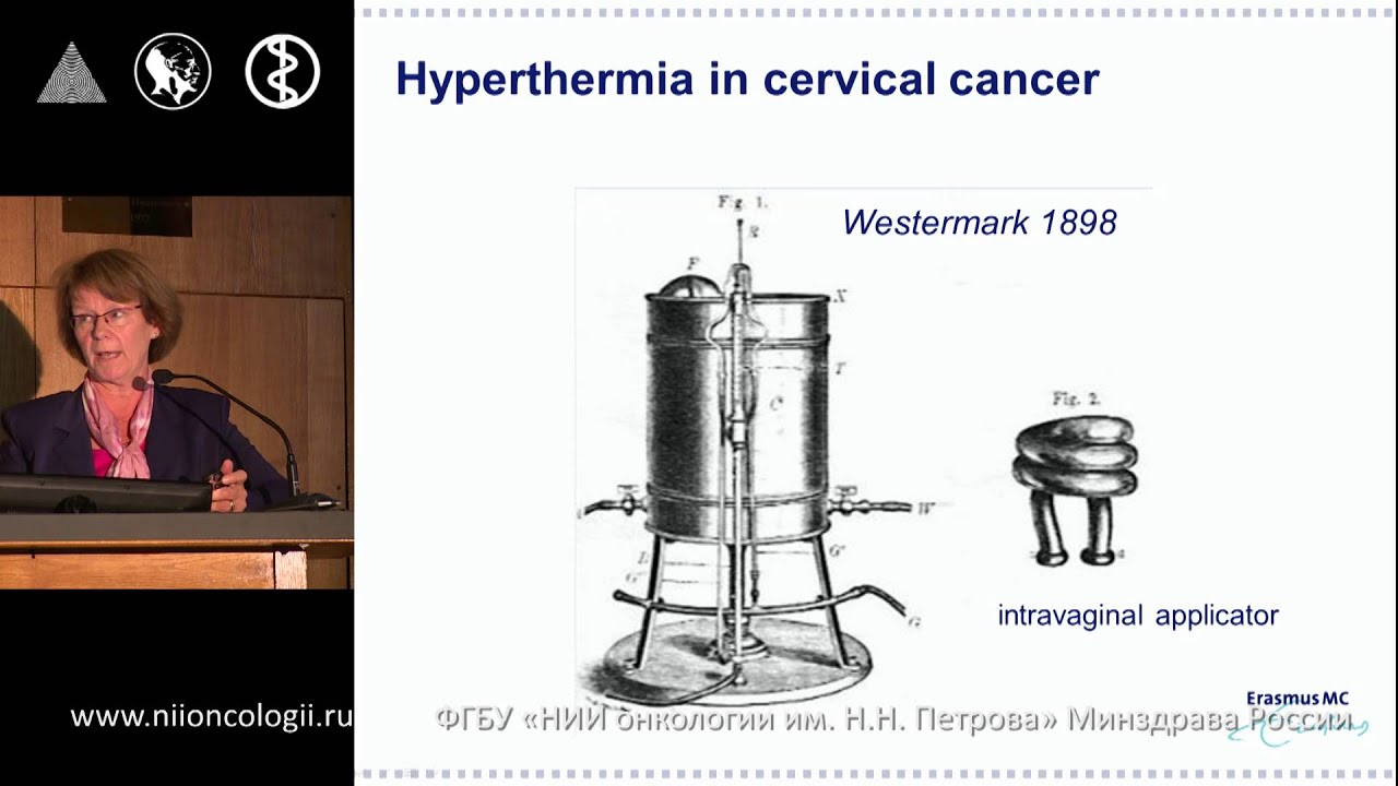 Hyperthermia for breast and cervical cancer - an overview