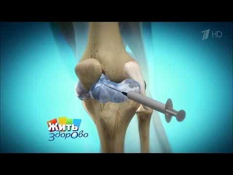 Жить здорово! Остеоартроз колена.  (29.01.2016)