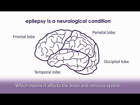 What is epilepsy? | Epilepsy Society