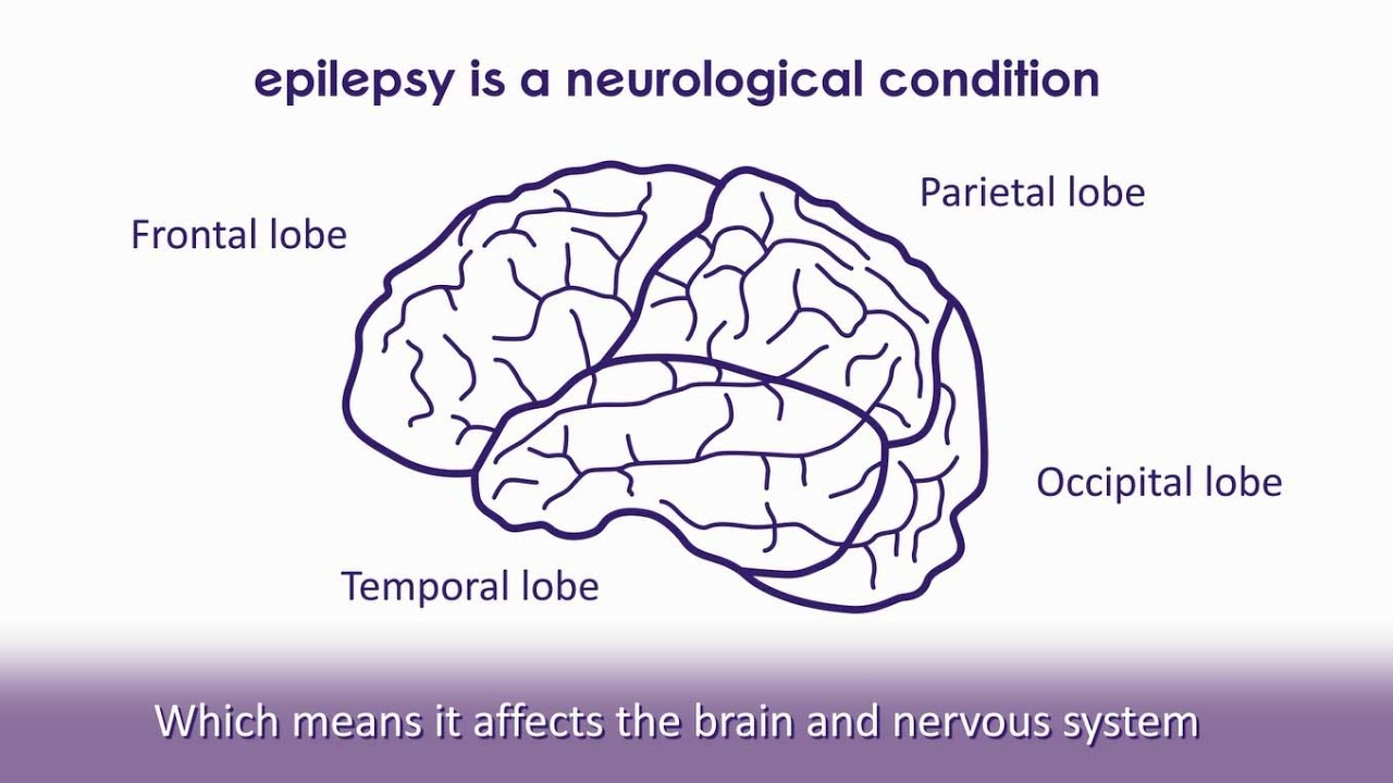 epilepsy reflection Epilepsy in those at risk of the disease, preventing epilepsy before the onset of chronic seizures nih funds a large portfolio of basic, translational, and.