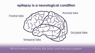 What is epilepsy?   Epilepsy Society