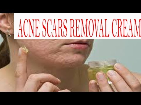 Totkay In Urdu For Skin | Acne Scare Removal Cream