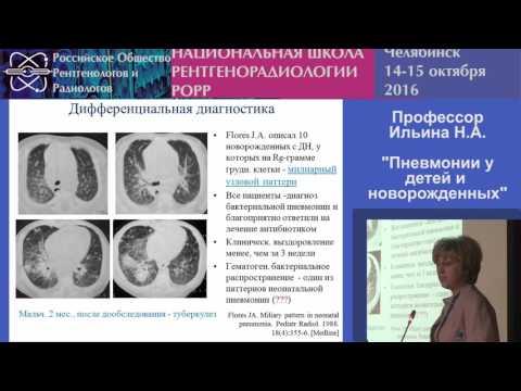 Как лечат пневмонию у новорожденных