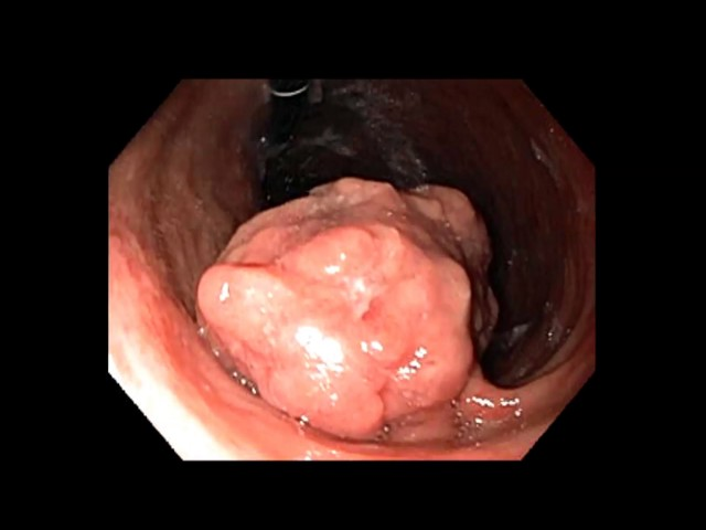Gastric Endoscopic Submucosal Dissection (ESD)