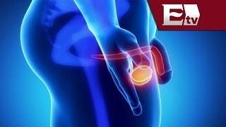 Cáncer de próstata: Síntomas y Factores de riesgo/ Salud con Gloria Contreras