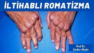 İltahaplı Romatizma nedir, Romatoid artrit nedir? Serdar Akgün