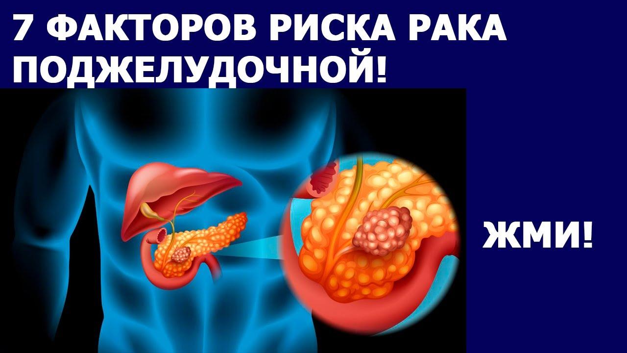 Онкология РАК ПОДЖЕЛУДОЧНОЙ ЖЕЛЕЗЫ. 7 ФАКТОРОВ РИСКА РАКА. Признаки рака поджелудочной