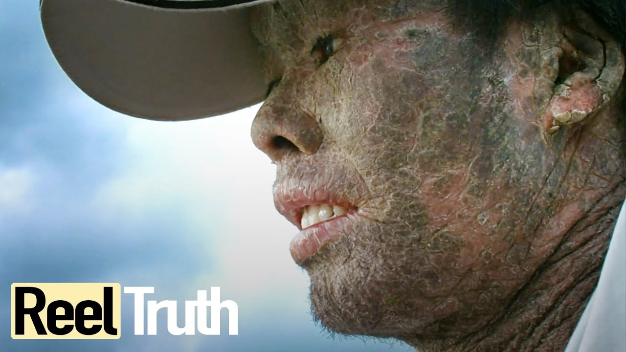 My Skin is Killing Me - Epidermolysis Bullosa | Extraordinary People Documentary | Reel Truth