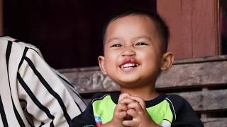 Bhakti sosial operasi bibir sumbing dan celah langit-langit bagi keluarga kurang mampu di RS Wijayak.