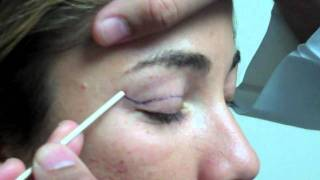 Dr. Jeffrey Epstein - Mark-Up for Upper Eyelid Blepharoplasty - Female Patient