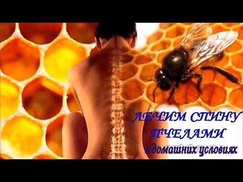 Лечение пчелами в домашних условиях в какие места можно сажать пчел схема