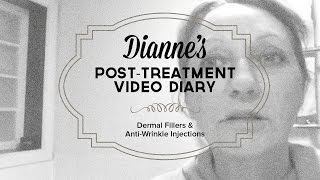 Dianne's post-treatment video diary - dermal fillers & anti-wrinkle injections Melbourne Thumbnail
