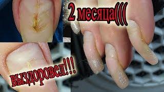 ❤ ВЫЗДОРОВЛЕНИЕ ногтя ❤ ПОКРЫТИЮ 2 МЕСЯЦА ❤ рисуем ВЕНЗЕЛЯ на ногтях ❤