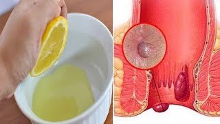 How To Get Rid Of Hemorrhoids Fast And Naturally At Home | 7 Proven Ways Cure Hemorrhoids