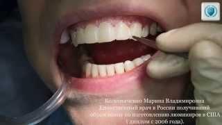 - эстетическая реставрация зубов винирами (голливудская улыбка)(Красивая реставрация зубов при помощи виниров (голливудская улыбка) в лучшей стоматологической клинике..., 2014-07-31T13:14:20.000Z)