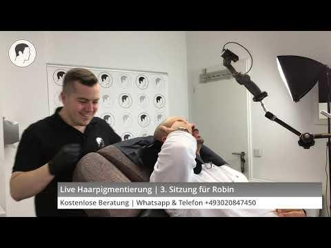Live Haarpigmentierung   3. Sitzung für Robin   Haarausfall Lösung   Modern Hair Loss Solution