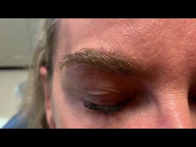 Dallas Corrective Eyebrow Hair Transplant HD Close-Up Result with Photos